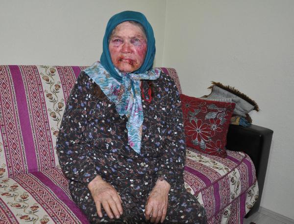 Nenesini Gasp Eden Torun ve Arkadaşı Gözaltına Alındı