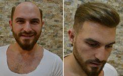 Saç Proteziyle Kendinize Olan Güveni Yeniden Kazanın